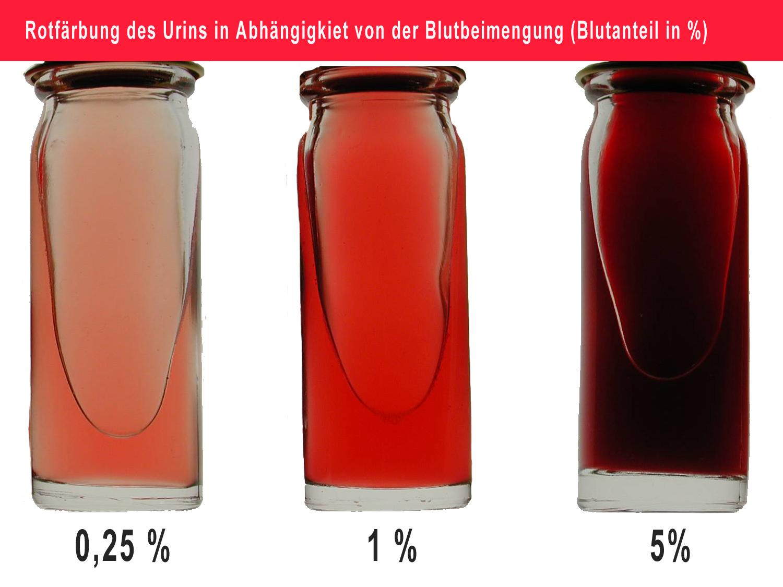 Über uns/Urologischer Notfall/Einseitige Flankenschmerzen ...