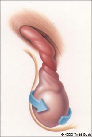 Verdreht hoden Hodentorsion: Symptome,